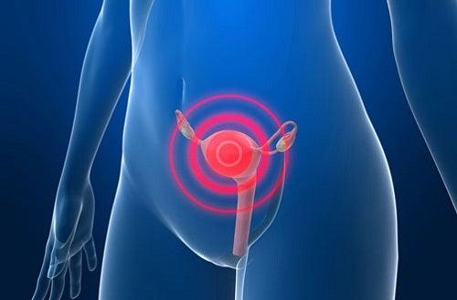 Fattori di rischio di un cancro all'utero