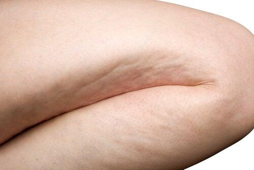 Consigli per combattere la cellulite in modo naturale