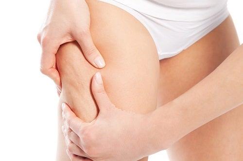 Alimenti che causano la cellulite