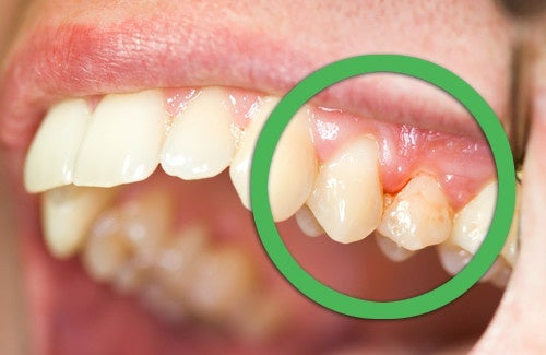 il mal di denti può essere provocato da un'infezione delle gengive