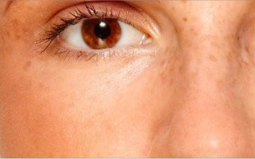 Tonici naturali contro le macchie della pelle