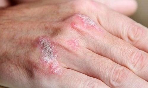 Dexamethasone ed eczema