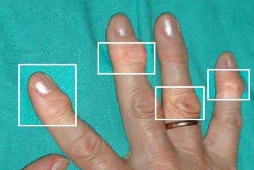 Contrastare l'artrite con rimedi naturali