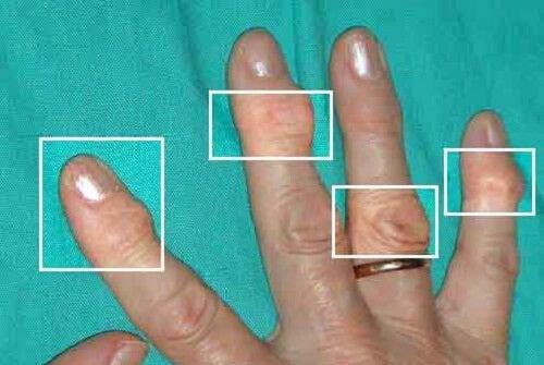 Rimedi naturali per trattare l'artrite