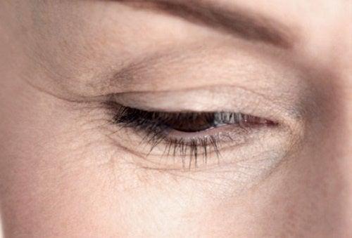 perdere peso sotto le rughe degli occhi