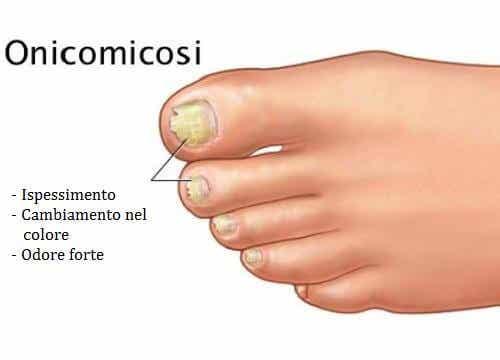 Funghi delle unghie: quando le unghie diventano gialle