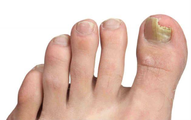 Come guarire un fungo di ununghia di piedi