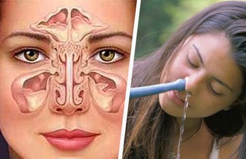 Rimedio semplice e naturale per la sinusite