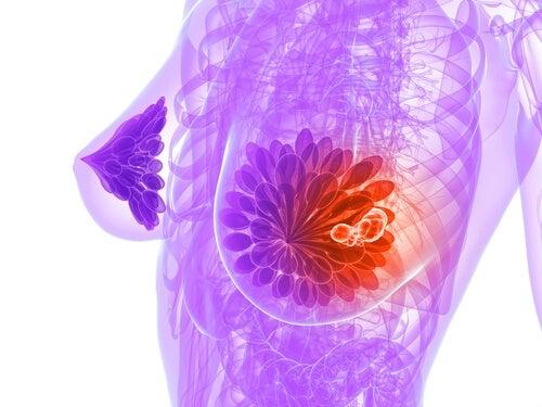 9 alimenti che aiutano a prevenire il cancro al seno
