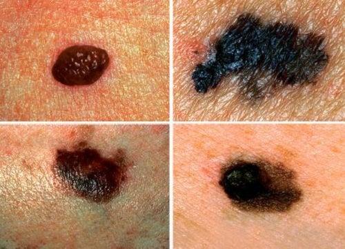 alterazioni pelle cancro