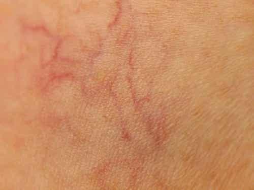 9 modi per prevenire i capillari visibili sulle gambe