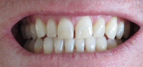 trattamento per denti splendenti