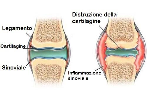 Come prevenire il dolore alle cartilagini