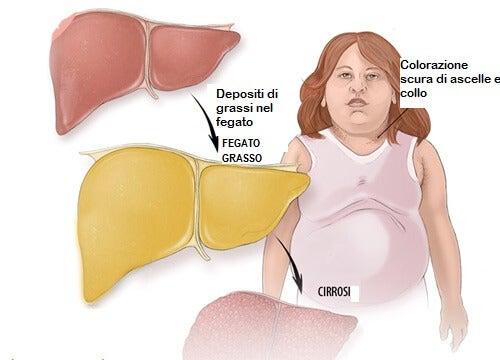Frutta adeguata per trattare il fegato grasso