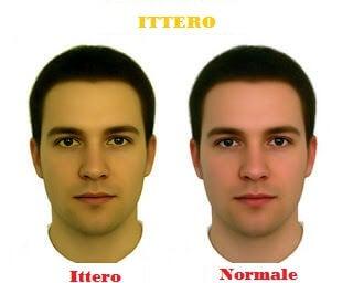 Viso maschile con ittero e viso normale
