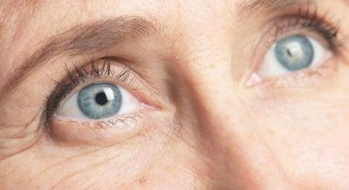 Rughe intorno agli occhi