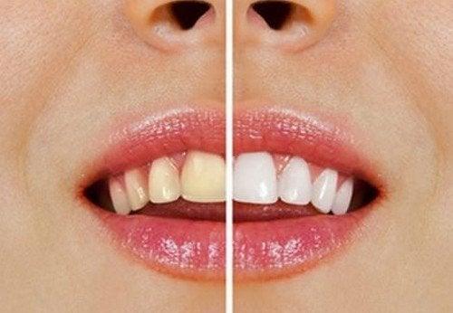 Come avere denti splendenti con prodotti naturali