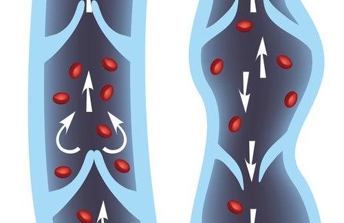 I 10 migliori rimedi per le vene varicose