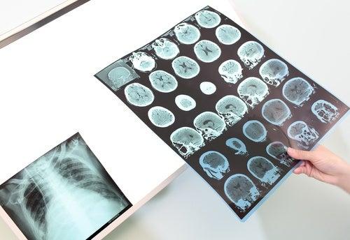 Relazione tra insonnia e Alzheimer - Radiografia del cervello