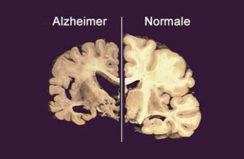 Collegamento tra insonnia ed Alzheimer?