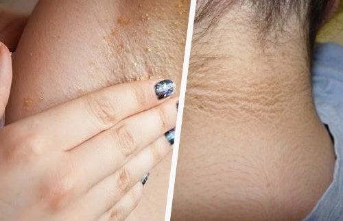 Come sbiancare la pelle del collo e delle ascelle