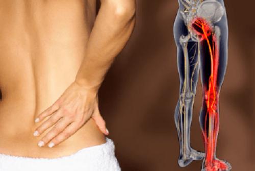 8 rimedi naturali per trattare la sciatica