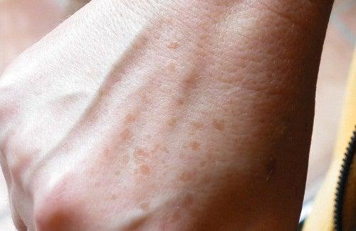 Il pigmentary nota su un corpo e una temperatura