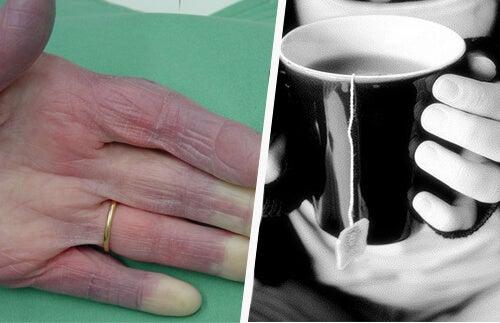 Mani fredde: possibili cause che è bene conoscere