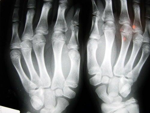 scrocchiarsi le dita - osteoartrite