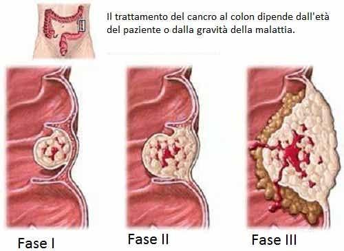Cosa bisogna sapere sul tumore al colon