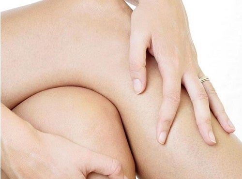 artrosi al ginocchio