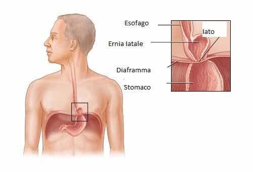 Curare l'ernia iatale: è possibile?