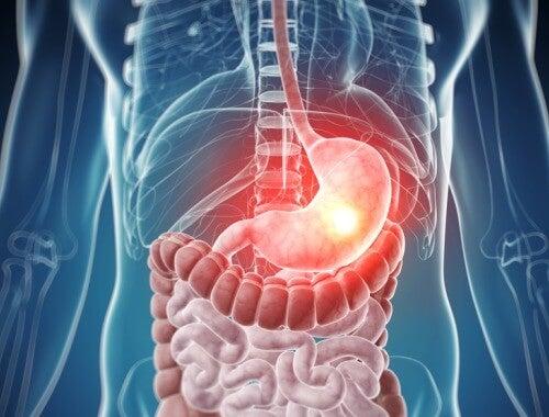 Intossicazione del corpo, sintomi e rimedi