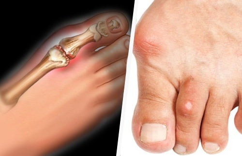 accumulo di acido urico nel piede