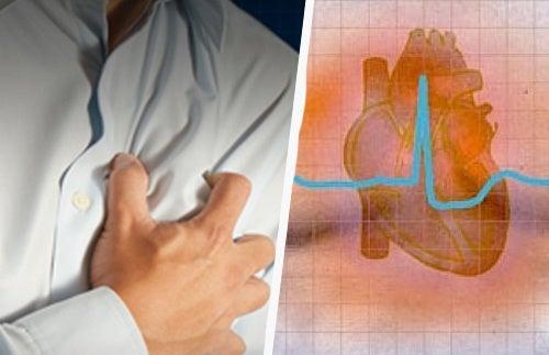 Aritmia cardiaca: sintomi e conseguenze