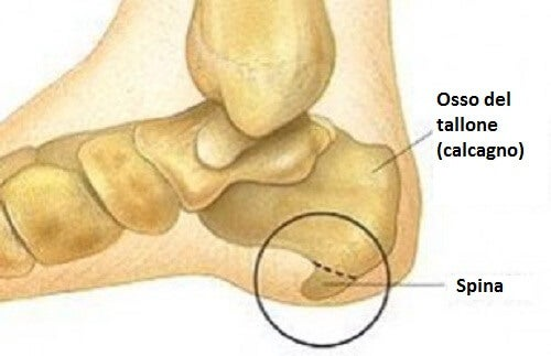 Spina calcaneare: sintomi e trattamento
