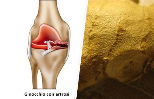 Artrosi: sintomi, rimedi e cure