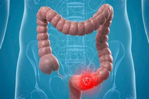 tumore al colon retto