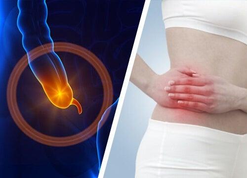 Appendicite: i sintomi da riconoscere