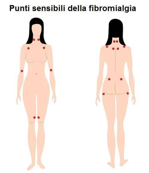 Trattare la fibromialgia