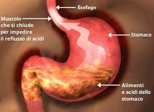 Stomaco con alimenti acidi