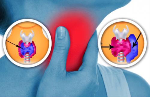 Come individuare in tempo le anomalie della tiroide