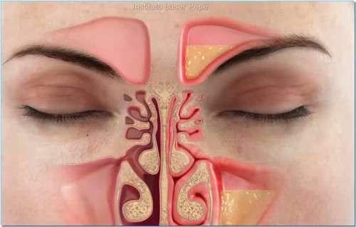 Come eliminare la congestione nasale in meno di un minuto