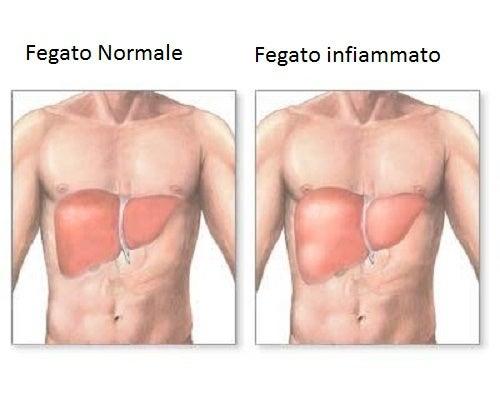 Sintomi del fegato infiammato e dieta adeguata