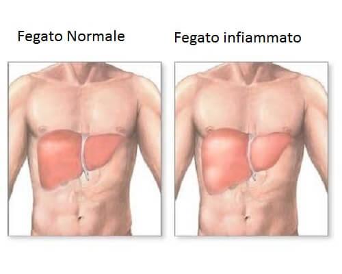 Come sapere se il fegato è infiammato?