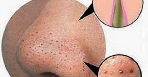 Vitamine di una targa da posti sulla faccia