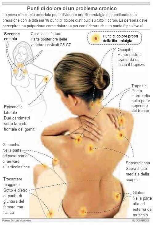 Punti sensibili della fibromialgia