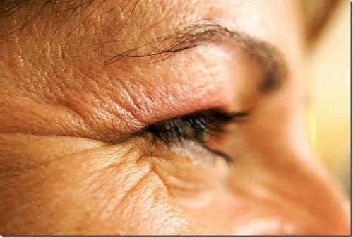 Ridurre le rughe nel contorno occhi