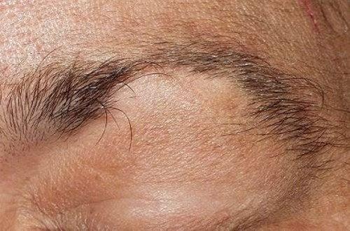 Alopecia di ciglia e sopracciglia: che rimedio bisogna usare?