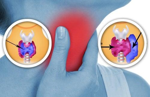 Anomalie-della-tiroide
